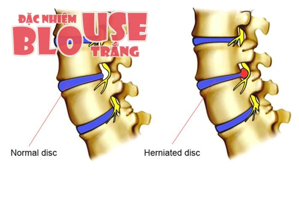 Đau thắt lưng mạn tính có thể do thoát vị đĩa đệm