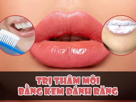 Cách trị thâm môi bằng kem đánh răng hiệu quả
