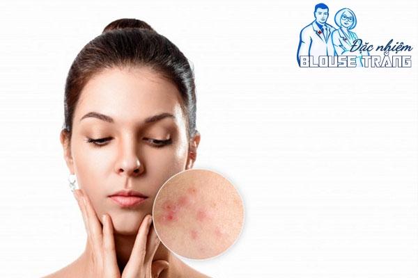 Mụn là một loại bệnh da liễu hình thành nguyên nhân do sự rối loạn chức năng của hormone và tuyến bã nhờn