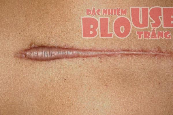 Sẹo là một phần mô bị xơ hoá, có thành phần Collagen tương tự da
