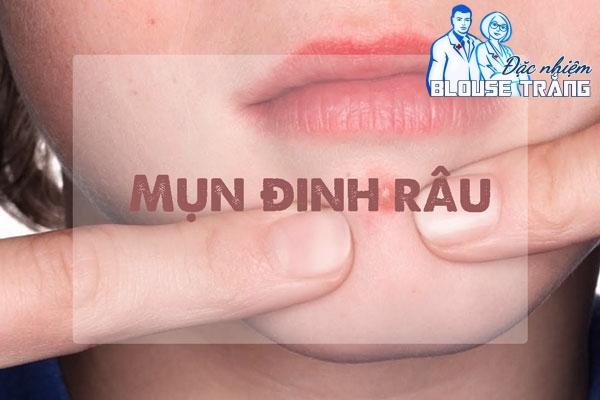 Mụn đinh râu thường được thấy xung quanh vùng miệng hay vùng cằm.