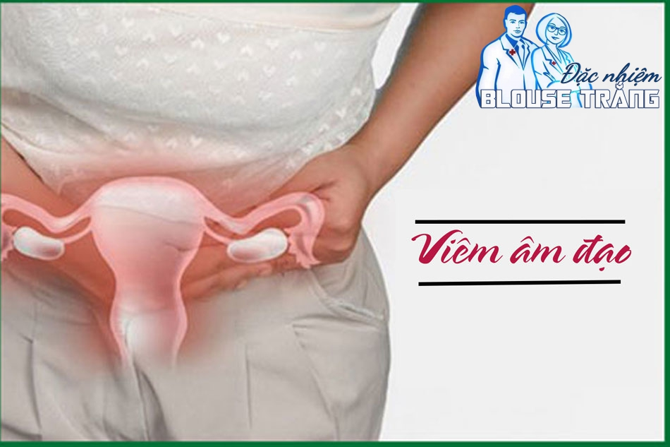 Viêm âm đạo thường là do nhiễm nấm Candida hoặc một số tác nhân khác như Trichomonas