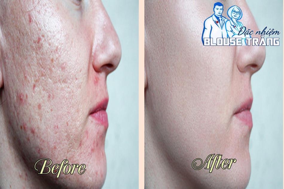 Tấm dán trị sẹo Scar FX có thể làm mờ hoặc xóa bỏ các vết sẹo trên da